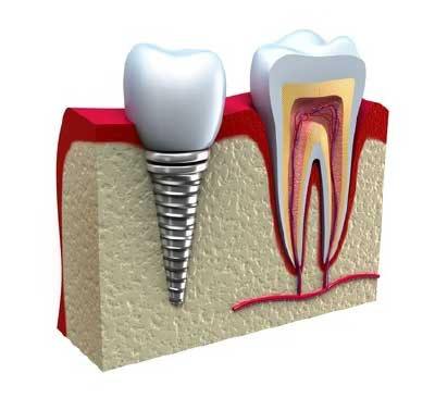 Implantes Dentales en Las Rozas