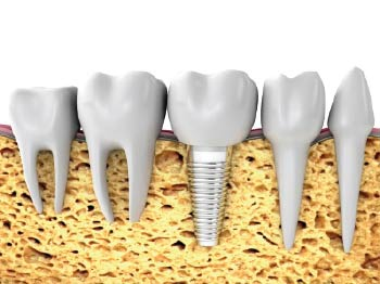 Implantes Dentale en Las Rozas de Madrid