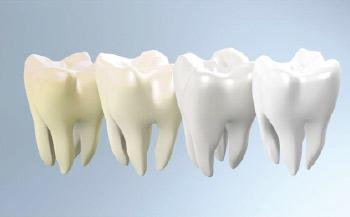 Blanqueamiento dental en Las Rozas