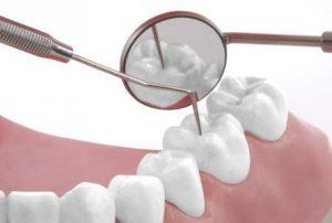 Tratamiento de la Caries Dental en las Rozas