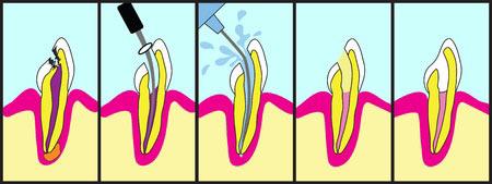 endodoncia-las-rozas-madrid-1