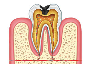 endodoncia-las-rozas-madrid-2