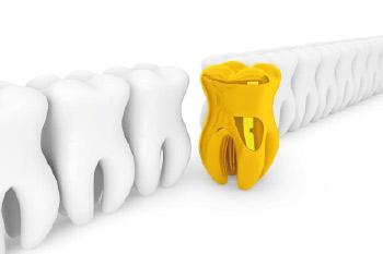 Estetica Dental Las Rozas Madrid