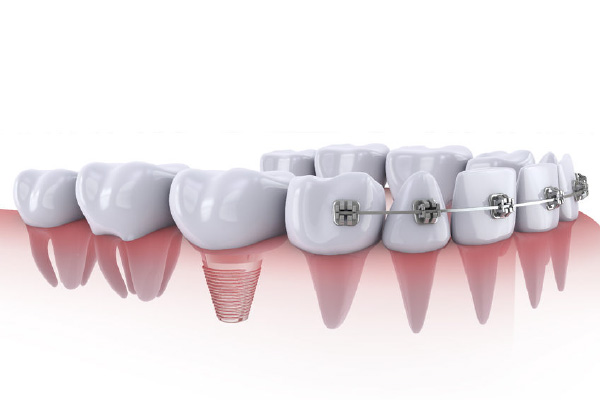 implantes-2