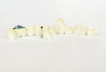 Protesis Dentales Las Rozas