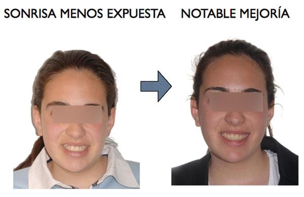 CANINOS ALTOS Y MALOCLUSIÓN POSTERIOR
